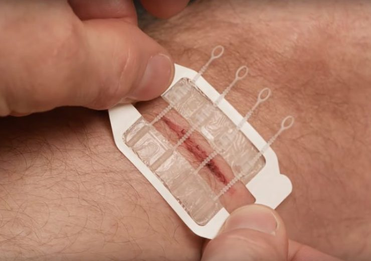 What is ZipStitch? The do-it-yourself device for closing wounds quickly wherever you are