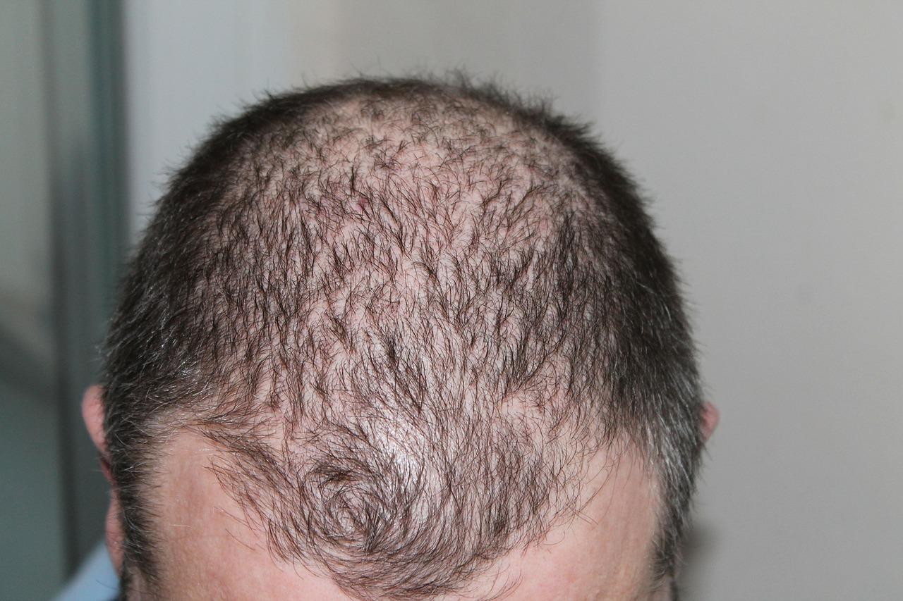 nutraceutical companies hair loss