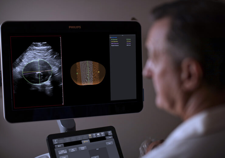 Philips rolls out 3D ultrasound-based abdominal aortic aneurysm model