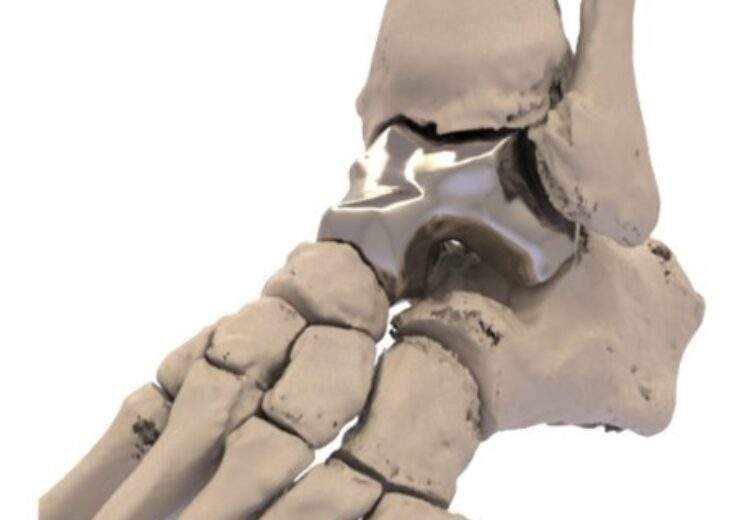 FDA approves Additive Orthopaedics' Patient Specific Talus Spacer for AVN